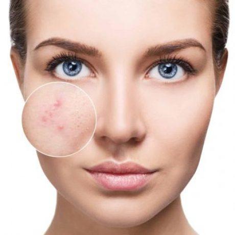 acne-face-treatment-470x400